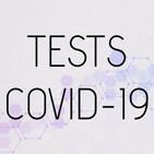 Raíz de 5 - 4x39 - Diario de una científica: Tests COVID-19, ¿qué sensibilidad tienen?